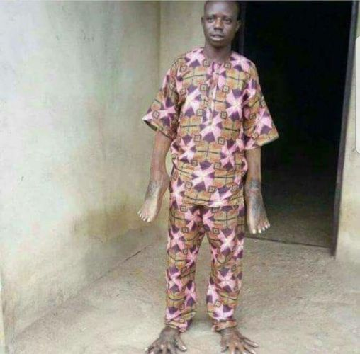 Man Had His Hands And Legs Switched After Sleeping With Someone's Wife